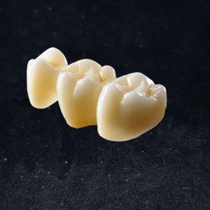brug te bestellen bij excellent dental